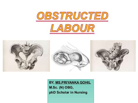 Obstructed labour
